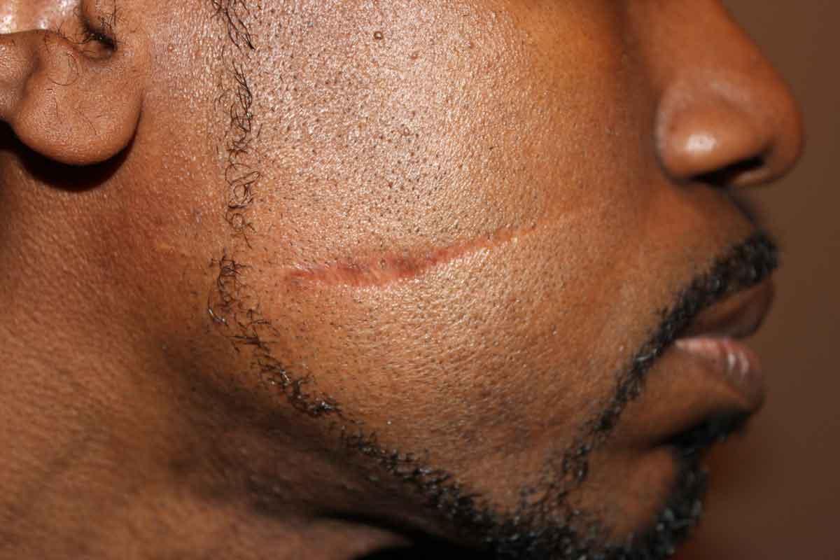 deep-scar